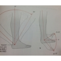 160131 120x120 - 【百本コラム】七本目:『足部の運動連鎖トリガー応用編』